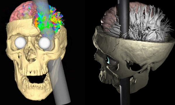 120515072017-phineas-gage-rod-skull-model-story-top